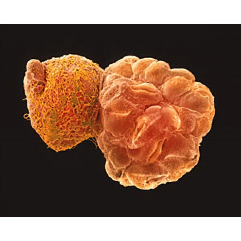 Nace el primer bebé modificado genéticamente